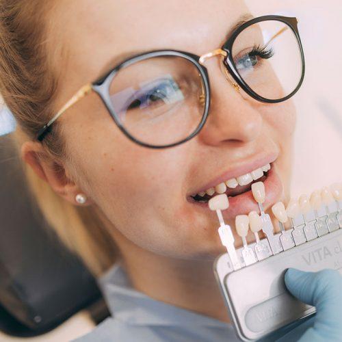 Zahn-Veneers mit individueller Zahnfarbe aus Baden-Baden.