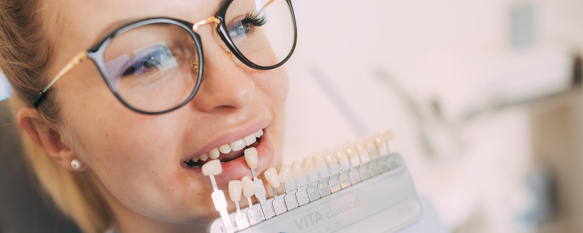 Veneers für blendend schöne Zähne aus Baden-Baden.