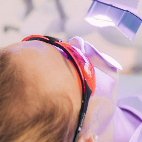 Bleaching-Gel wird mit Hilfe einer Lampe beim Zahnarzt in Baden-Baden aufgewärmt.