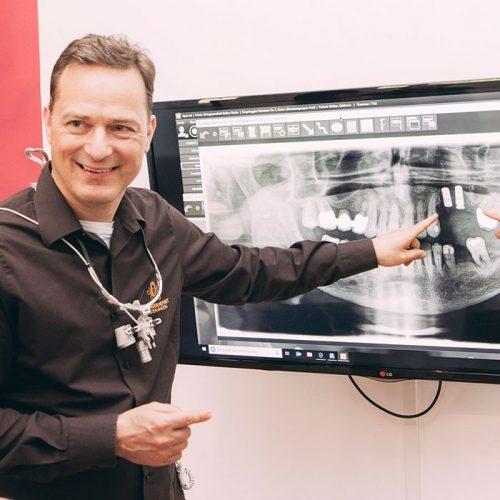 Dr. Torsten Kamm zeigt geplante Stelle für Zahnimplantate in Baden-Baden.