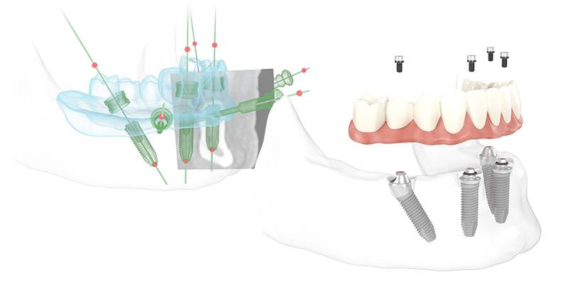 Zahnimplantate an einem Tag
