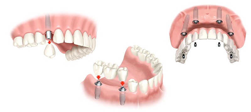 Möglichkeiten mit Zahnimplantaten